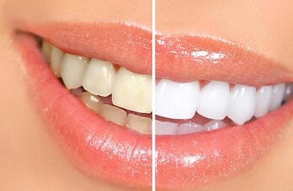 Tooth whitening method